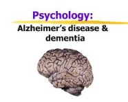 Negative Beliefs About Aging May Promote Development of  Alzheimer's